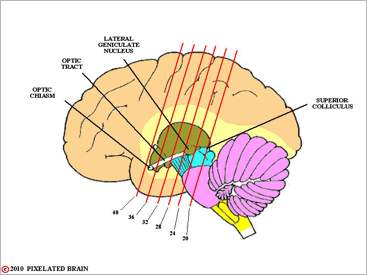 pixelated brain: module 11, section 4 - the optic chiasm, Human Body