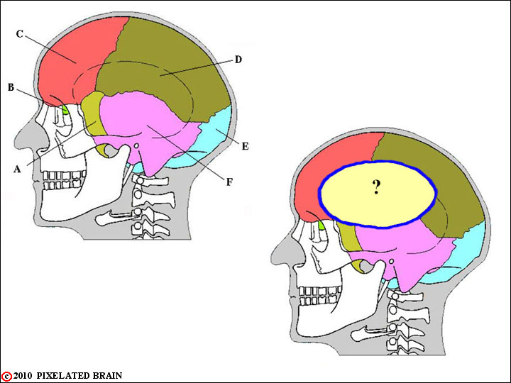 Pixelated Brain Module 1 The Skull The Meninges Csf And The
