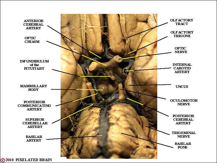 Pixelated Brain Module 11 Section 4 The Optic Chiasm