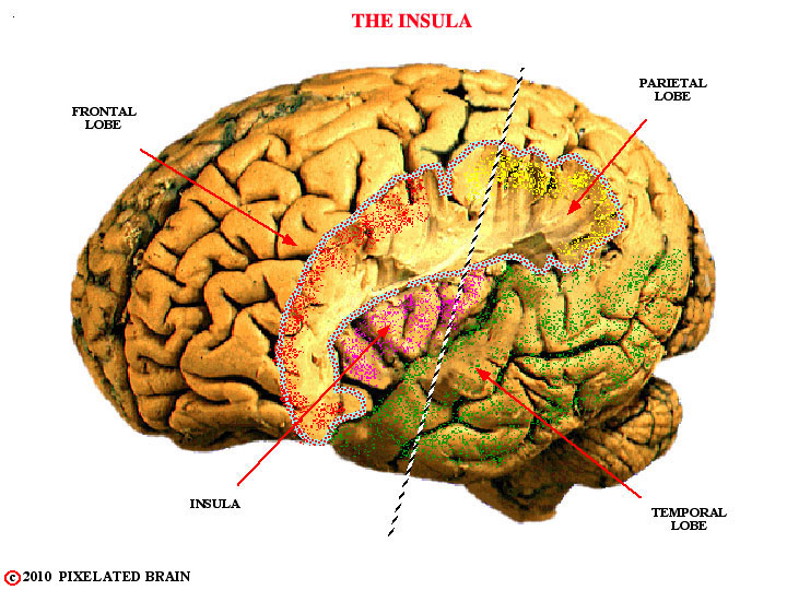 Pixelated Brain Neuroanatomy For Medical Students