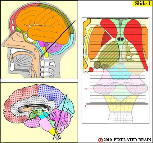 Pixelated Brain: Neuroanatomy for Medical Students