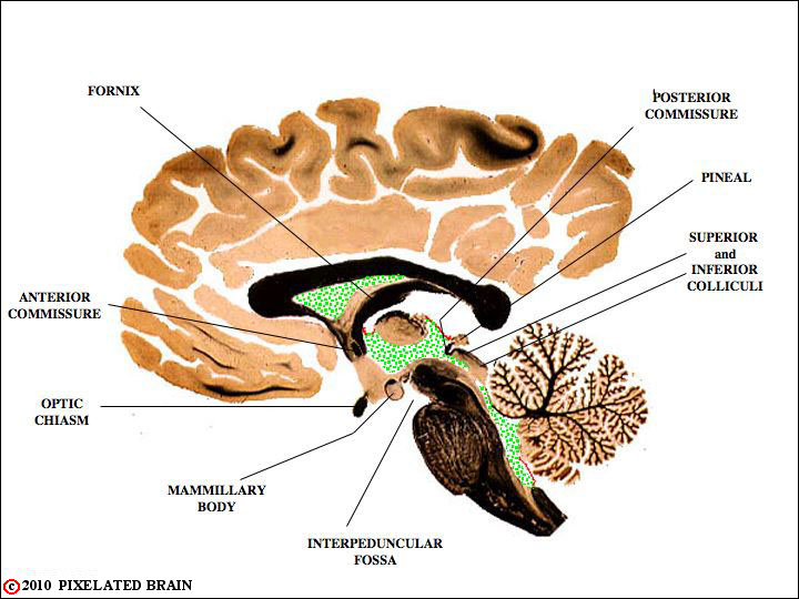 Pixelated Brain: Neuroanatomy for Medical Students - Module 1